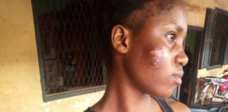 UNBELIEVABLE: Ambrose Ali University Student Bites Room mate for This